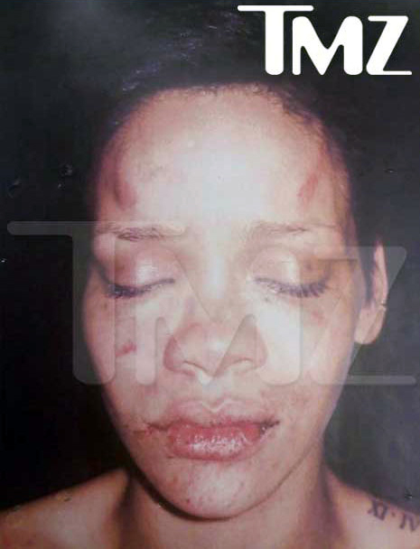 beaten_rihanna_police_pic